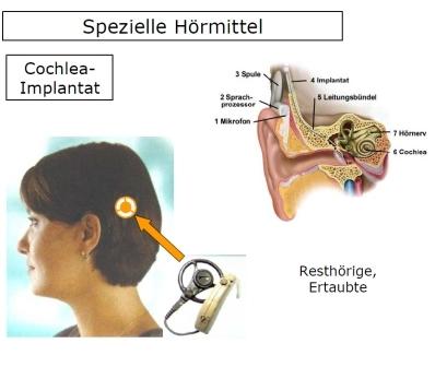 Das Cochlear-Implantat